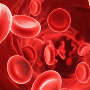 Fast Recovery for Anemia through Ayurvedic Treatment